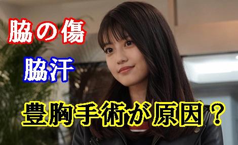 今田美桜の脇の傷と脇汗は豊胸手術が原因?エラは整形で唇はたらこ?