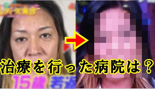 ジャガー横田が幹細胞治療(手術)した病院はどこ?整形前と後を画像で比較!